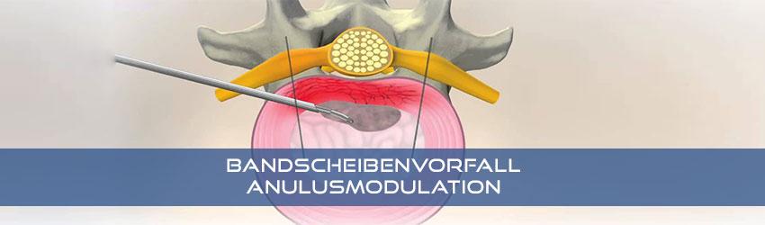 Die minimal-invasive erweiterte Nukleoplastie eines Bandscheibenvorfalles