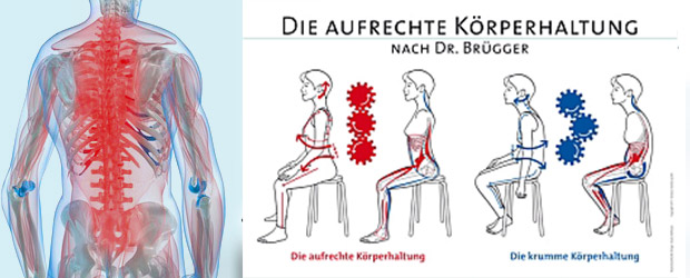 Konzept nach Dr. Brügger