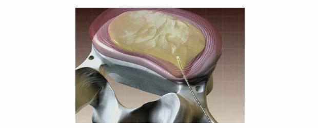 Nukleoplastie – eine schonende Behandlungsmethode für Bandscheibenvorfälle